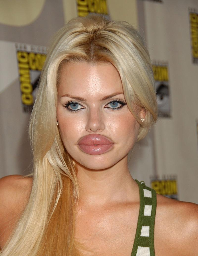 Miss Botox 2009